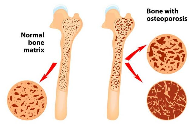normal bone matrix vs bone with osteoporosis