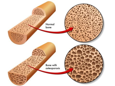 Normal bone vs bone with osteoporosis