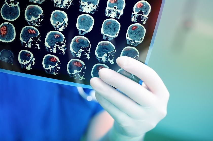 New MRI Procedure Could Help Doctors Understand Association between Fluid Flow and Brain Tumors