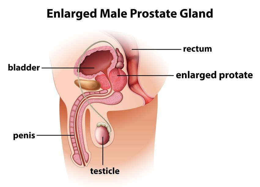 Men Here Is What You Should Know About Prostate Cancer Rai Health