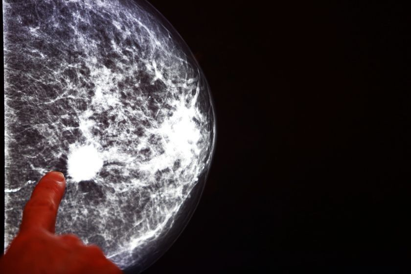 Types Of Mammography And How They Differ - Rai Health -3531