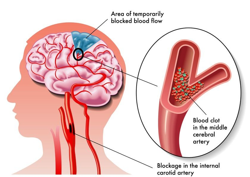 These 3 Imaging Tests Can Help Determine Your Risk Of Stroke Rai
