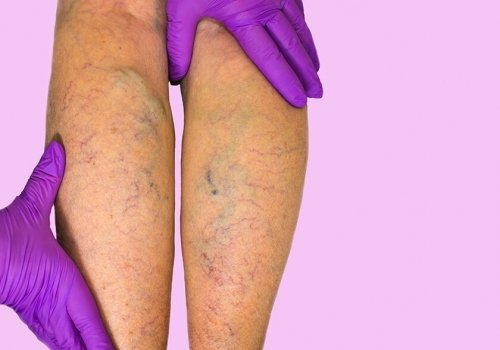 Chronic Venous Insufficiency: Know What to Look…