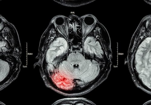 Researchers Support the Use of Imaging to…