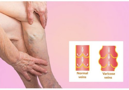 People with Varicose Veins have a Higher…